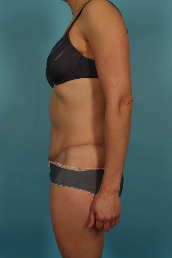 Tummy Tuck (Abdominoplasty) Gallery - Patient 13574688 - Image 6