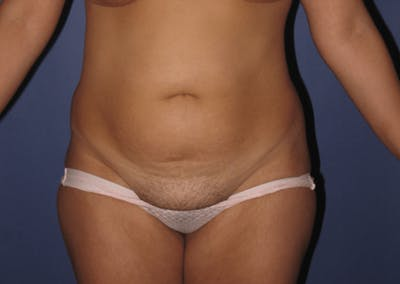 Tummy Tuck (Abdominoplasty) Gallery - Patient 13574689 - Image 1