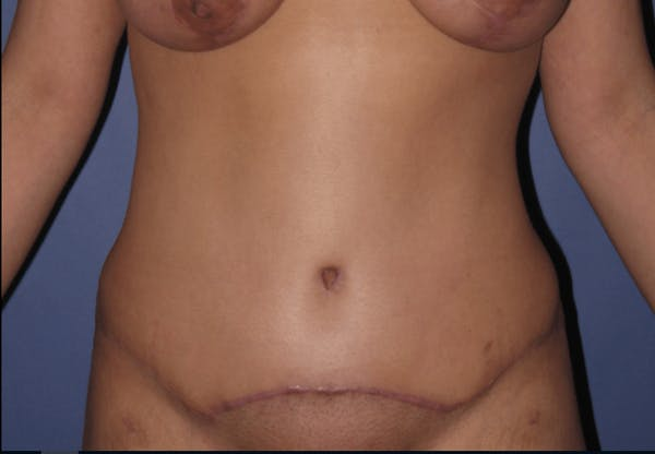Tummy Tuck (Abdominoplasty) Gallery - Patient 13574689 - Image 2