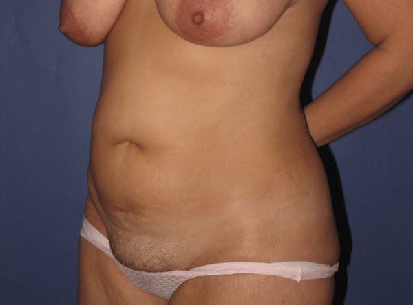 Tummy Tuck (Abdominoplasty) Gallery - Patient 13574689 - Image 3