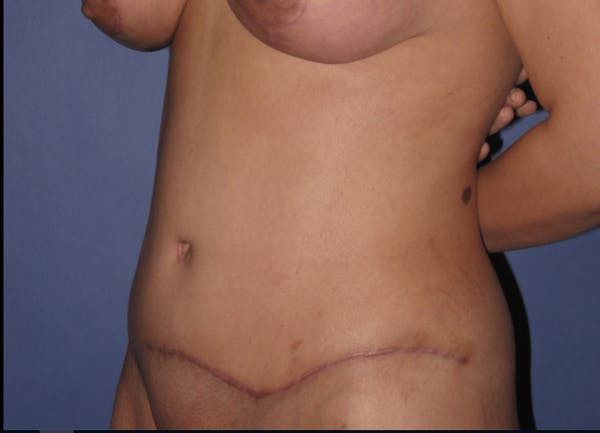 Tummy Tuck (Abdominoplasty) Gallery - Patient 13574689 - Image 4