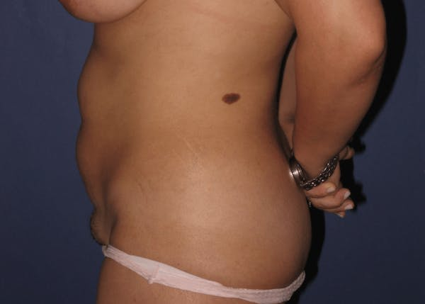 Tummy Tuck (Abdominoplasty) Gallery - Patient 13574689 - Image 5