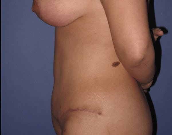 Tummy Tuck (Abdominoplasty) Gallery - Patient 13574689 - Image 6