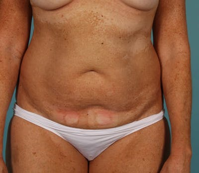 Tummy Tuck (Abdominoplasty) Gallery - Patient 13574691 - Image 1