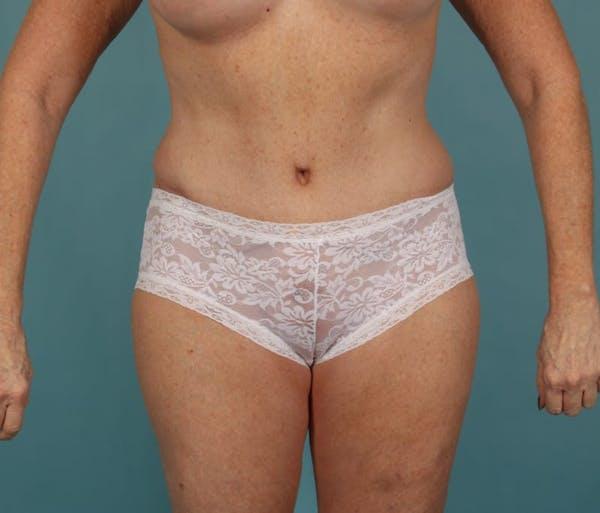 Tummy Tuck (Abdominoplasty) Gallery - Patient 13574691 - Image 2
