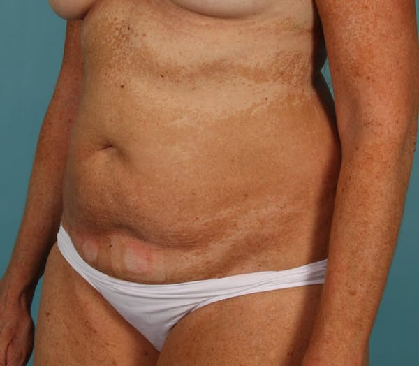 Tummy Tuck (Abdominoplasty) Gallery - Patient 13574691 - Image 3