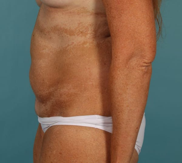 Tummy Tuck (Abdominoplasty) Gallery - Patient 13574691 - Image 5