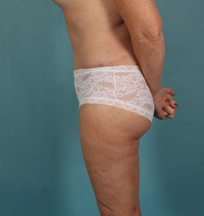 Tummy Tuck (Abdominoplasty) Gallery - Patient 13574691 - Image 6