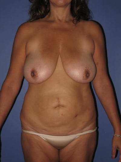 Tummy Tuck (Abdominoplasty) Gallery - Patient 13574692 - Image 1