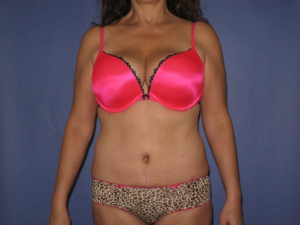 Tummy Tuck (Abdominoplasty) Gallery - Patient 13574692 - Image 2