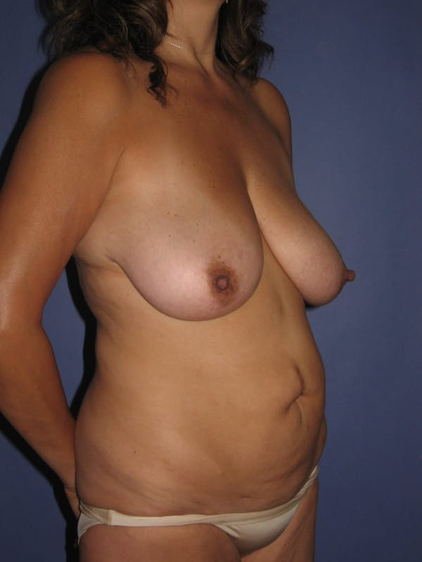 Tummy Tuck (Abdominoplasty) Gallery - Patient 13574692 - Image 3