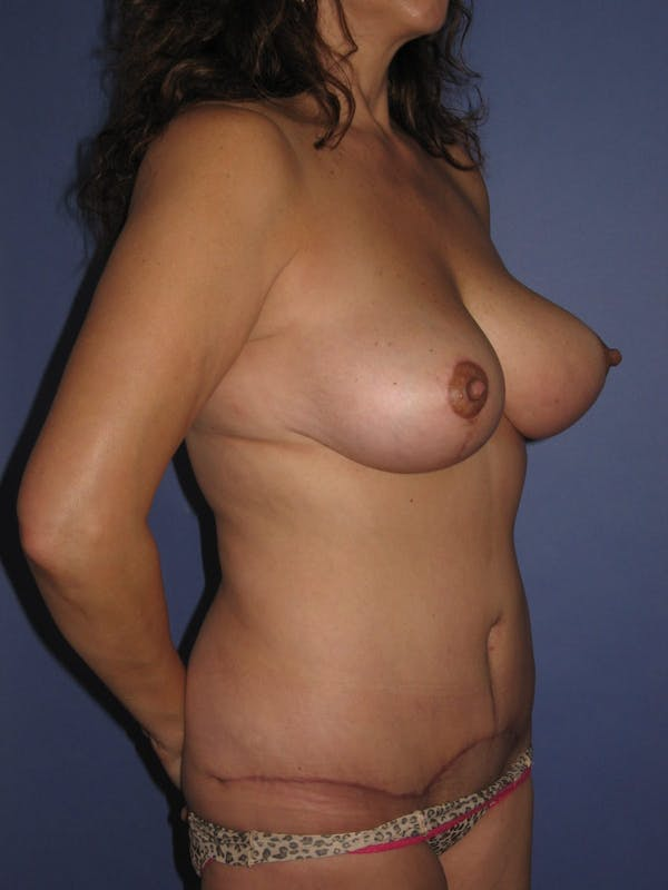 Tummy Tuck (Abdominoplasty) Gallery - Patient 13574692 - Image 4