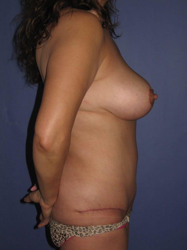 Tummy Tuck (Abdominoplasty) Gallery - Patient 13574692 - Image 6