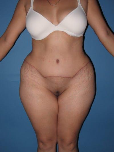 Tummy Tuck (Abdominoplasty) Gallery - Patient 13574694 - Image 2