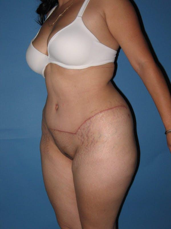 Tummy Tuck (Abdominoplasty) Gallery - Patient 13574694 - Image 4