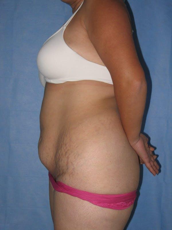 Tummy Tuck (Abdominoplasty) Gallery - Patient 13574694 - Image 5