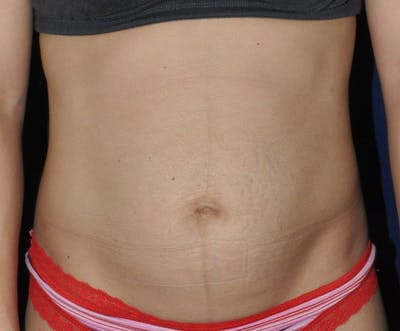 Tummy Tuck (Abdominoplasty) Gallery - Patient 13574696 - Image 1