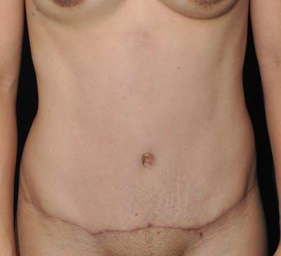 Tummy Tuck (Abdominoplasty) Gallery - Patient 13574696 - Image 2