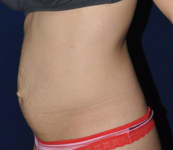 Tummy Tuck (Abdominoplasty) Gallery - Patient 13574696 - Image 3