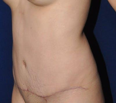 Tummy Tuck (Abdominoplasty) Gallery - Patient 13574696 - Image 4
