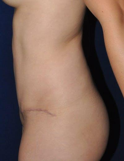 Tummy Tuck (Abdominoplasty) Gallery - Patient 13574696 - Image 6