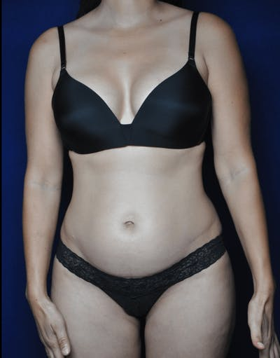 Tummy Tuck (Abdominoplasty) Gallery - Patient 13574697 - Image 1
