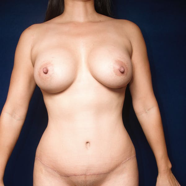 Tummy Tuck (Abdominoplasty) Gallery - Patient 13574697 - Image 2