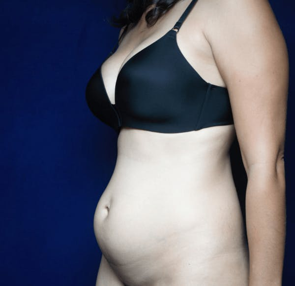 Tummy Tuck (Abdominoplasty) Gallery - Patient 13574697 - Image 3