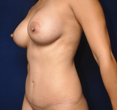 Tummy Tuck (Abdominoplasty) Gallery - Patient 13574697 - Image 4