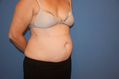 Tummy Tuck (Abdominoplasty) Gallery - Patient 13574698 - Image 1