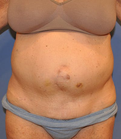 Tummy Tuck (Abdominoplasty) Gallery - Patient 13574700 - Image 1