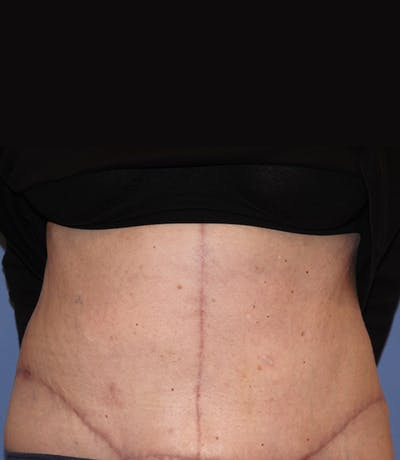 Tummy Tuck (Abdominoplasty) Gallery - Patient 13574700 - Image 2