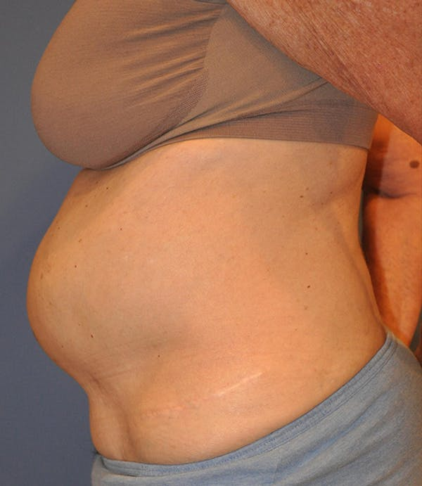 Tummy Tuck (Abdominoplasty) Gallery - Patient 13574700 - Image 3