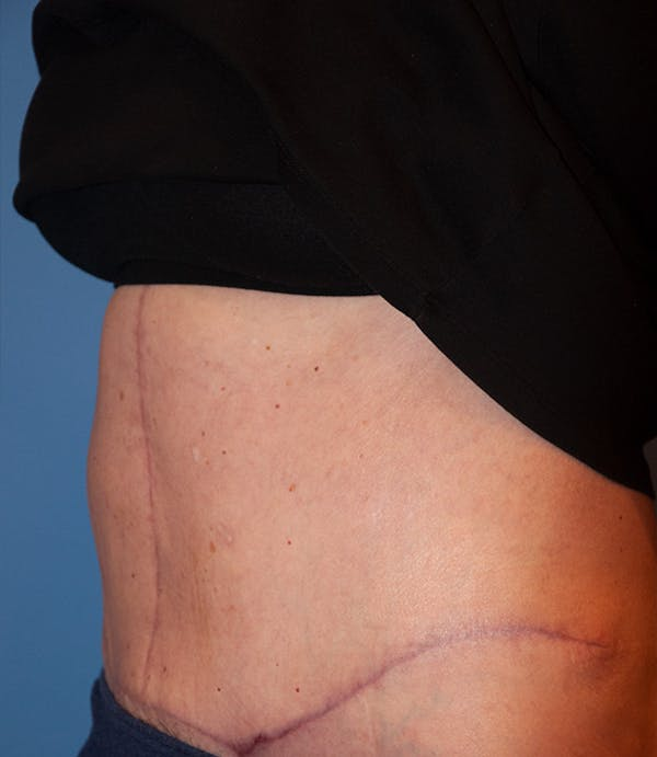 Tummy Tuck (Abdominoplasty) Gallery - Patient 13574700 - Image 4