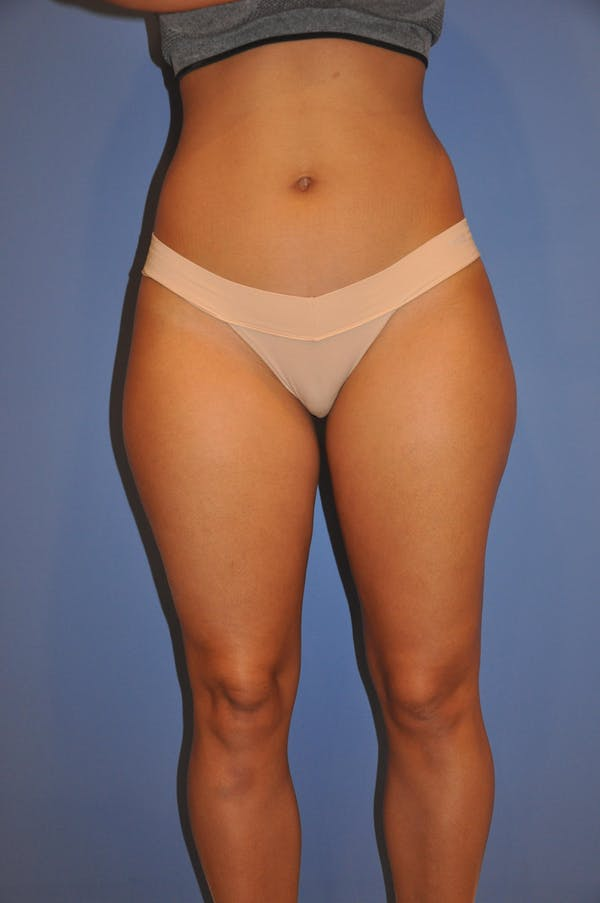 Liposuction Gallery - Patient 13574701 - Image 1