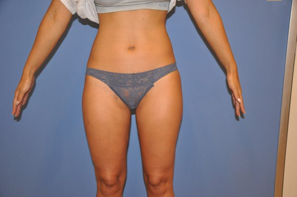Liposuction Gallery - Patient 13574701 - Image 2