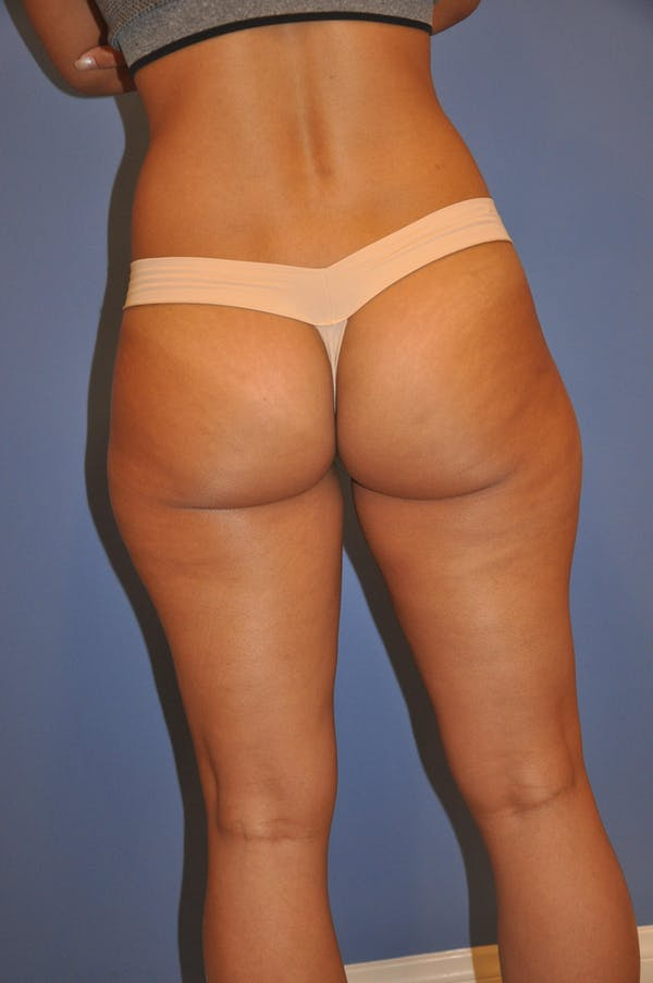 Liposuction Gallery - Patient 13574701 - Image 3
