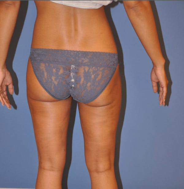 Liposuction Gallery - Patient 13574701 - Image 4