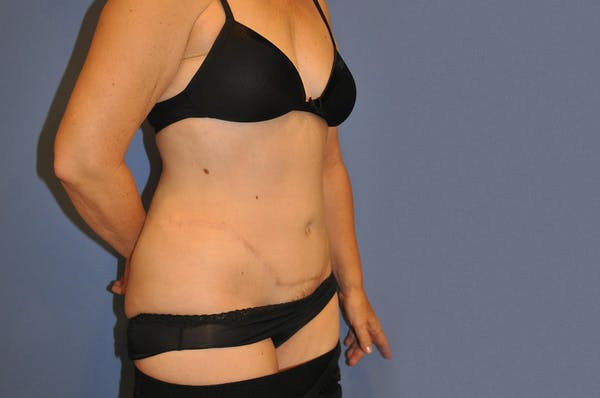 Liposuction Gallery - Patient 13574704 - Image 2