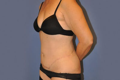Liposuction Gallery - Patient 13574704 - Image 4
