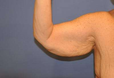 Brachioplasty (Arm Lift) Gallery - Patient 13574716 - Image 1