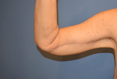 Brachioplasty (Arm Lift) Gallery - Patient 13574716 - Image 2