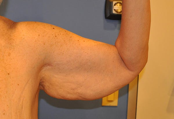 Brachioplasty (Arm Lift) Gallery - Patient 13574716 - Image 3