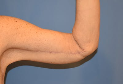 Brachioplasty (Arm Lift) Gallery - Patient 13574716 - Image 4