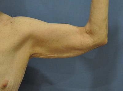 Brachioplasty (Arm Lift) Gallery - Patient 13574718 - Image 1