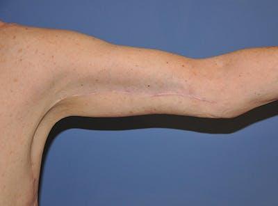 Brachioplasty (Arm Lift) Gallery - Patient 13574718 - Image 2