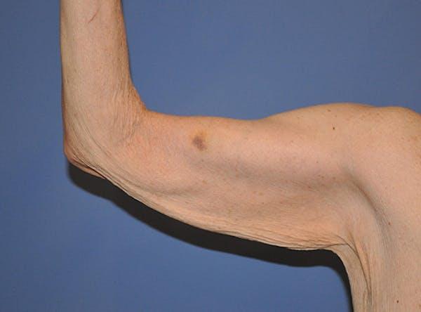 Brachioplasty (Arm Lift) Gallery - Patient 13574718 - Image 3