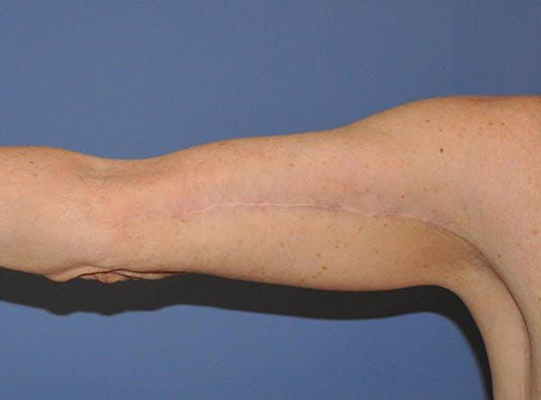 Brachioplasty (Arm Lift) Gallery - Patient 13574718 - Image 4
