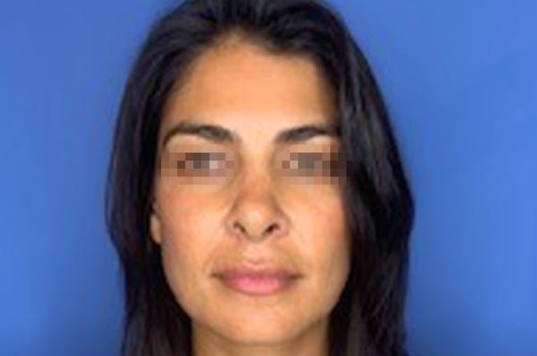 Rhinoplasty Gallery - Patient 13574730 - Image 2