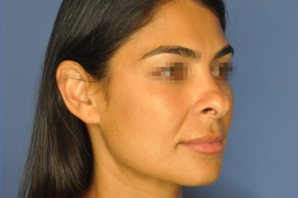 Rhinoplasty Gallery - Patient 13574730 - Image 3
